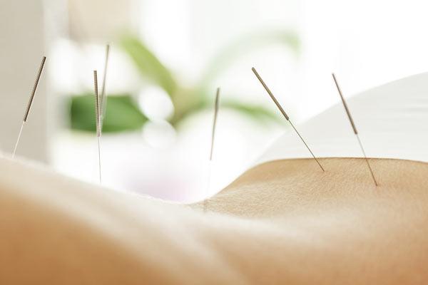 akupunktur lüchow uelzen salzwedel